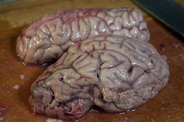 мозги1
